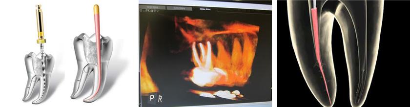 Endodoncia Avanzada