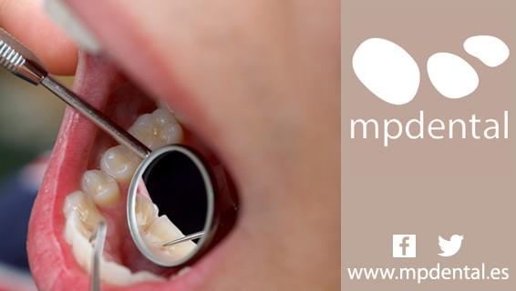 MPDental_Consejos_Prevenir_Placa