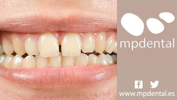 MPDental_Diastema_Dental_Peligros