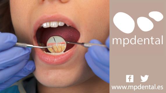 Cómo Eliminar La Placa Dentalclínicas Dentales Muñoz Preciado Mpdental